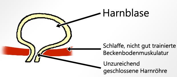 liebeskugeln beckenbodenmuskulatur beckenbodentraining harninkontinenz inkontinenz blase